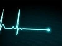 Monitor zeigt Herzschlag
